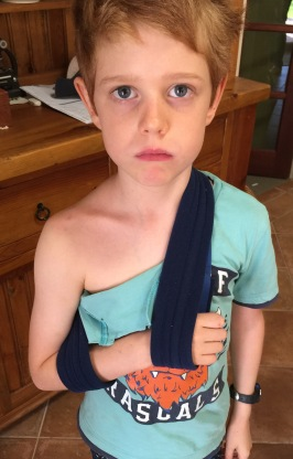 Zac broken shoulder
